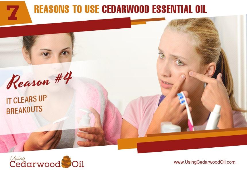 benefits of cedarwood essential oil